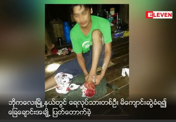 A fishermen from Bogalay lost some toes by Crocodile attack